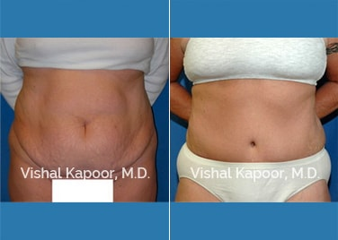 Patient 09 Front View Tummy Tuck Beverly Hills Cosmetic Plastic Surgery Doc