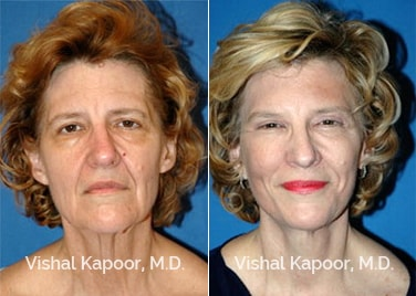 Patient 02 Front View Face Neck Rejuvenation Beverly Hills Cosmetic Plastic Surgery Doc