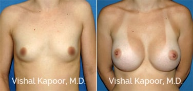 Patient 23 Front View Breast Augmentation Beverly Hills Cosmetic Plastic Surgery Doc