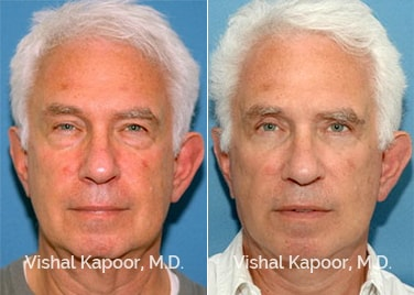 Patient 03 Front View Face Neck Rejuvenation Beverly Hills Cosmetic Plastic Surgery Doc