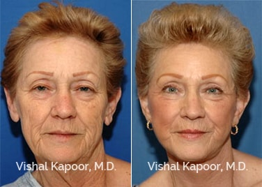 Patient 04 Front View Face Neck Rejuvenation Beverly Hills Cosmetic Plastic Surgery Doc