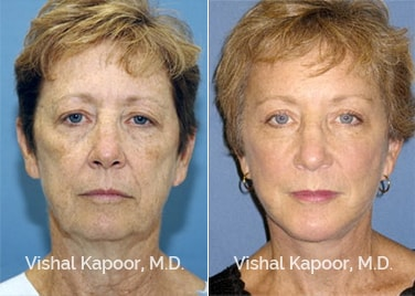 Patient 05 Front View Face Neck Rejuvenation Beverly Hills Cosmetic Plastic Surgery Doc