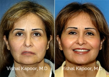 Patient 07 Front View Face Neck Rejuvenation Beverly Hills Cosmetic Plastic Surgery Doc
