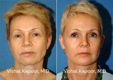 Patient 08 Front View Face Neck Rejuvenation Beverly Hills Cosmetic Plastic Surgery Doc