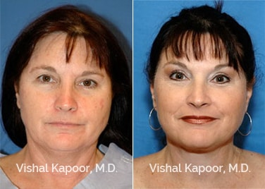 Patient 09 Front View Face Neck Rejuvenation Beverly Hills Cosmetic Plastic Surgery Doc