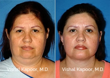 Patient 12 Front View Face Neck Rejuvenation Beverly Hills Cosmetic Plastic Surgery Doc