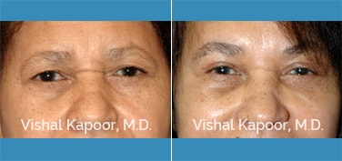 Patient 07 Front View Eyelid Surgery Beverly Hills Cosmetic Plastic Surgery Doc