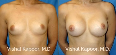 Patient 25 Front View Breast Augmentation Beverly Hills Cosmetic Plastic Surgery Doc