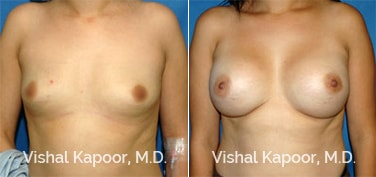 Patient 27 Front View Breast Augmentation Beverly Hills Cosmetic Plastic Surgery Doc