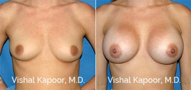 Patient 28 Front View Breast Augmentation Beverly Hills Cosmetic Plastic Surgery Doc