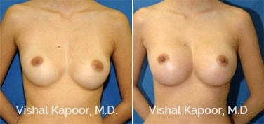 Patient 05 Front View Breast Augmentation Beverly Hills Cosmetic Plastic Surgery Doc
