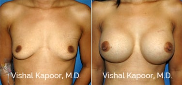 Patient 29 Front View Breast Augmentation Beverly Hills Cosmetic Plastic Surgery Doc