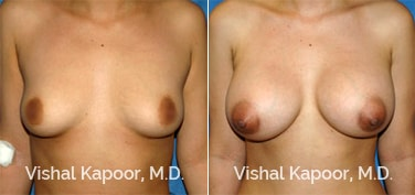 Patient 30 Front View Breast Augmentation Beverly Hills Cosmetic Plastic Surgery Doc