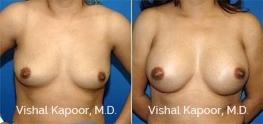 Patient 31 Front View Breast Augmentation Beverly Hills Cosmetic Plastic Surgery Doc