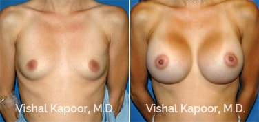 Patient 32 Front View Breast Augmentation Beverly Hills Cosmetic Plastic Surgery Doc