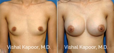Patient 33 Front View Breast Augmentation Beverly Hills Cosmetic Plastic Surgery Doc