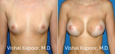 Patient 34 Front View Breast Augmentation Beverly Hills Cosmetic Plastic Surgery Doc