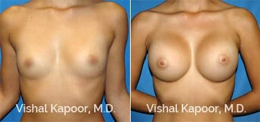 Patient 35 Front View Breast Augmentation Beverly Hills Cosmetic Plastic Surgery Doc
