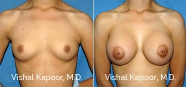 Patient 36 Front View Breast Augmentation Beverly Hills Cosmetic Plastic Surgery Doc