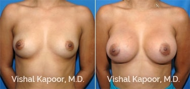 Patient 37 Front View Breast Augmentation Beverly Hills Cosmetic Plastic Surgery Doc