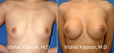 Patient 38 Front View Breast Augmentation Beverly Hills Cosmetic Plastic Surgery Doc