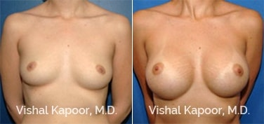 Patient 06 Front View Breast Augmentation Beverly Hills Cosmetic Plastic Surgery Doc