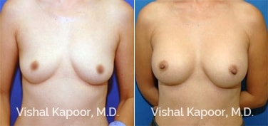 Patient 39 Front View Breast Augmentation Beverly Hills Cosmetic Plastic Surgery Doc