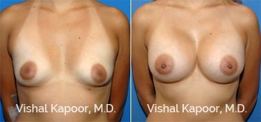 Patient 40 Front View Breast Augmentation Beverly Hills Cosmetic Plastic Surgery Doc