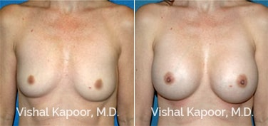 Patient 41 Front View Breast Augmentation Beverly Hills Cosmetic Plastic Surgery Doc