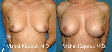 Patient 42 Front View Breast Augmentation Beverly Hills Cosmetic Plastic Surgery Doc