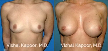 Patient 43 Front View Breast Augmentation Beverly Hills Cosmetic Plastic Surgery Doc