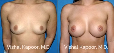 Patient 44 Front View Breast Augmentation Beverly Hills Cosmetic Plastic Surgery Doc