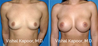 Patient 45 Front View Breast Augmentation Beverly Hills Cosmetic Plastic Surgery Doc
