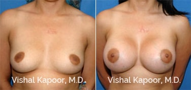 Patient 07 Front View Breast Augmentation Beverly Hills Cosmetic Plastic Surgery Doc