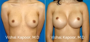Patient 48 Front View Breast Augmentation Beverly Hills Cosmetic Plastic Surgery Doc