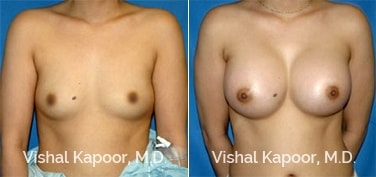 Patient 50 Front View Breast Augmentation Beverly Hills Cosmetic Plastic Surgery Doc