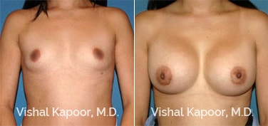 Patient 51 Front View Breast Augmentation Beverly Hills Cosmetic Plastic Surgery Doc