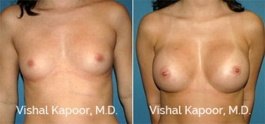 Patient 52 Front View Breast Augmentation Beverly Hills Cosmetic Plastic Surgery Doc