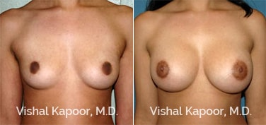 Patient 53 Front View Breast Augmentation Beverly Hills Cosmetic Plastic Surgery Doc
