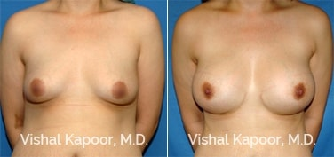 Patient 54 Front View Breast Augmentation Beverly Hills Cosmetic Plastic Surgery Doc