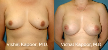 Patient 55 Front View Breast Augmentation Beverly Hills Cosmetic Plastic Surgery Doc