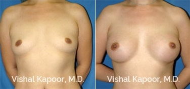 Patient 08 Front View Breast Augmentation Beverly Hills Cosmetic Plastic Surgery Doc