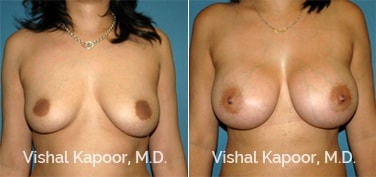 Patient 57 Front View Breast Augmentation Beverly Hills Cosmetic Plastic Surgery Doc