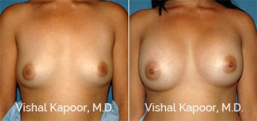 Patient 58 Front View Breast Augmentation Beverly Hills Cosmetic Plastic Surgery Doc