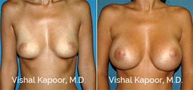 Patient 59 Front View Breast Augmentation Beverly Hills Cosmetic Plastic Surgery Doc