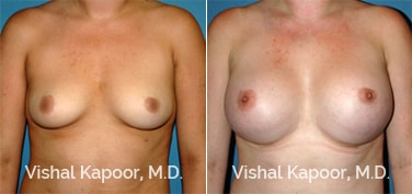 Patient 60 Front View Breast Augmentation Beverly Hills Cosmetic Plastic Surgery Doc