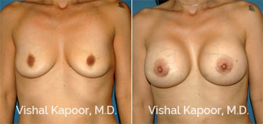 Patient 62 Front View Breast Augmentation Beverly Hills Cosmetic Plastic Surgery Doc