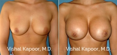 Patient 63 Front View Breast Augmentation Beverly Hills Cosmetic Plastic Surgery Doc