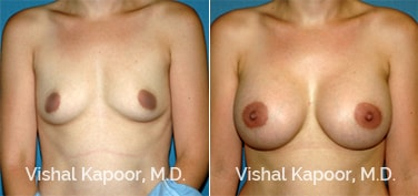 Patient 65 Front View Breast Augmentation Beverly Hills Cosmetic Plastic Surgery Doc