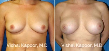 Patient 09 Front View Breast Augmentation Beverly Hills Cosmetic Plastic Surgery Doc